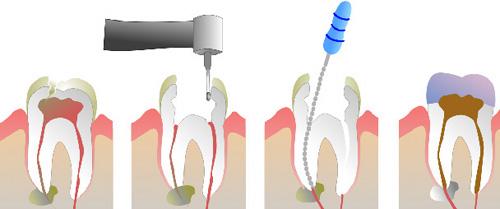 tecnica endodontica