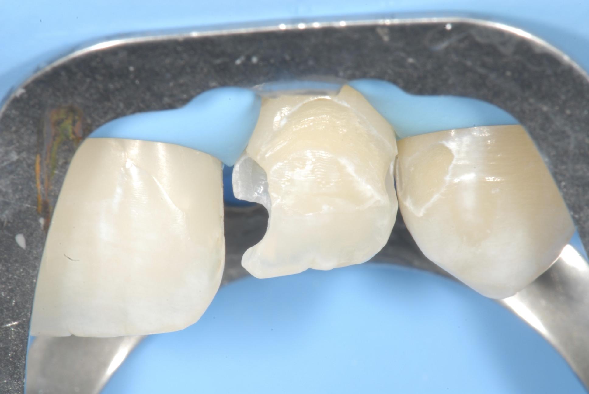 terapia conservativa studio dentistico calimera lecce
