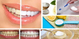 come sbiancare denti rimedi naturali